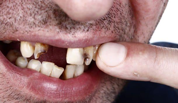 Perdre ses dents dans un cauchemar.