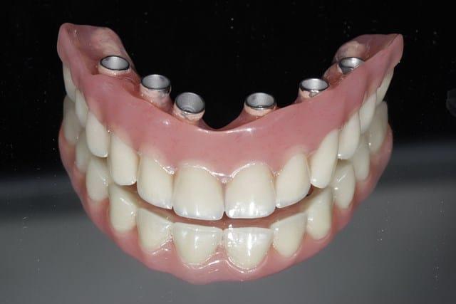 Pourquoi rêver de fausses dents ?