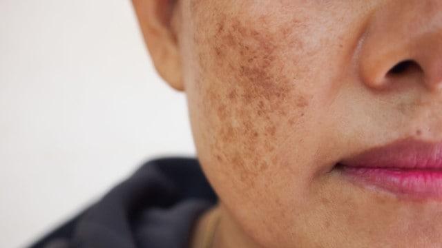 Que signifie rêver de taches sur le visage ?